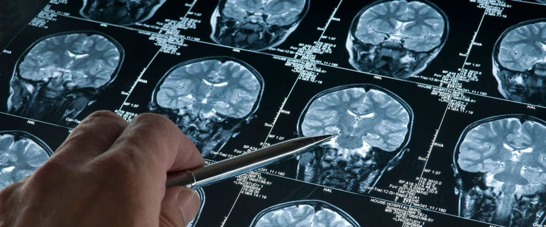 ١.٢ مليار رنجت لافتتاح مركز علوم الأعصاب للسياحة العلاجية في ٢٠٢٣