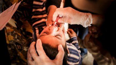 Photo of أول حالة شلل أطفال في ماليزيا منذ 27 عامًا