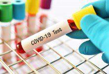 Photo of 38 إصابة جديدة بفيروس كورونا في ماليزيا منها 26 مستوردة