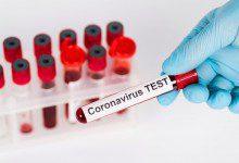 Photo of 82 إصابة جديدة بفيروس كورونا في ماليزيا