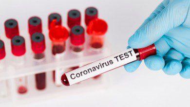 صورة 3,631 إصابة جديدة بفيروس كورونا في ماليزيا