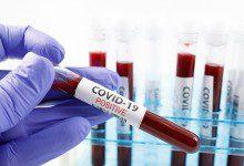 صورة 835 إصابة جديدة بفيروس كورونا في ماليزيا