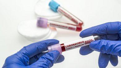 صورة 1,141 إصابة جديدة بفيروس كورونا في ماليزيا
