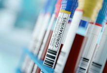 صورة 1,075 إصابة جديدة بفيروس كورونا في ماليزيا