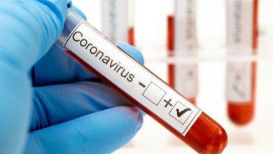 صورة 3,170 إصابة جديدة بفيروس كورونا في ماليزيا