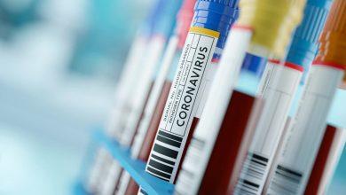 صورة 3339 إصابة جديدة بفيروس كورونا في ماليزيا