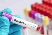 صورة 4,765 إصابة جديدة بفيروس كورونا في ماليزيا