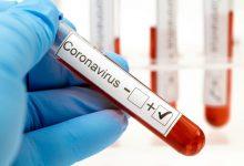 صورة 17,577 إصابة جديدة بفيروس كورونا في ماليزيا