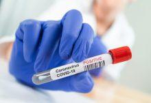 صورة 5,516 إصابات جديدة بفيروس كورونا في ماليزيا